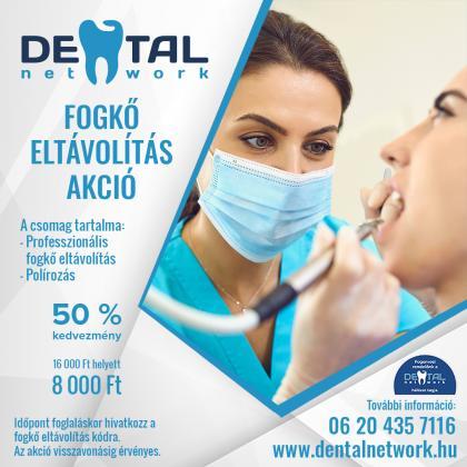 Fogkő Eltávolítás Akció az Árkád Dentalban
