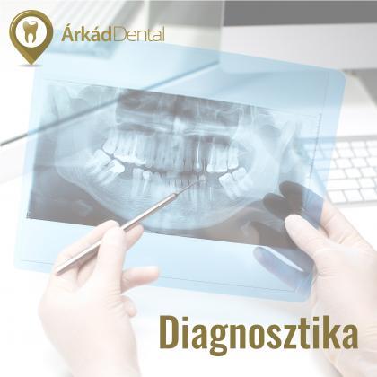 Diagnosztika - fogászati szűrés