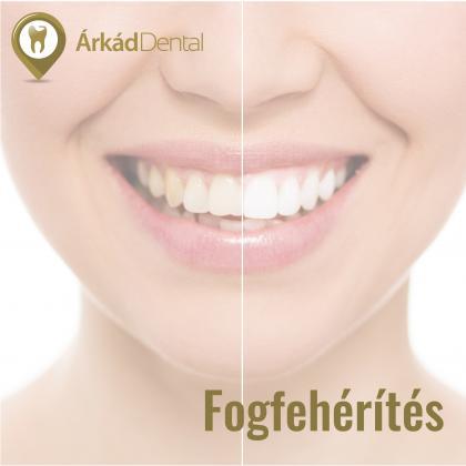 Fogfehérítés - csillogóan fehér fogak
