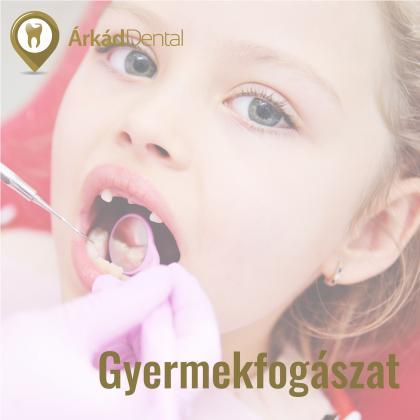 Gyermekfogászat - a kicsik fogászati prevenciója