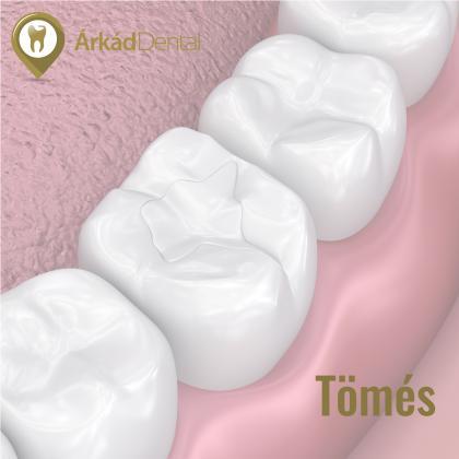 Konzerváló fogászat - Fogtömés